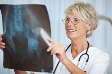 Hüftarthrose – was tun?